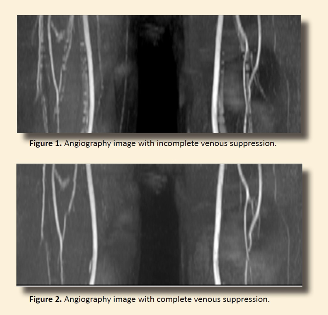 Contrast free MR angiography
