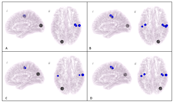 Reduced connectivity between visual & somatosensory,motor regions in AN