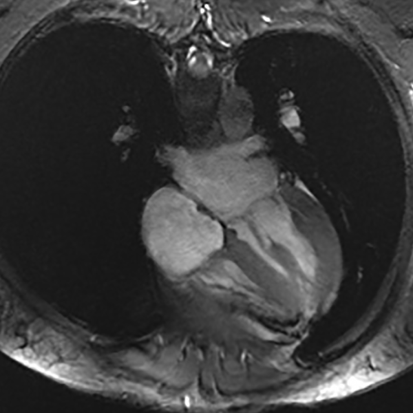 MRI slice showing the heart and chest