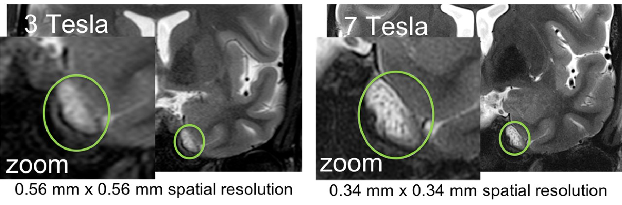 MRI images showing a slice of brain with perineural cancer spread. The images highlight a region which is blurry in 3T and well defined in 7T.